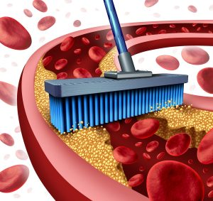 Cleaning arteries concept as a broom removing plaque buildup in a clogged artery as a symbol of atherosclerosis disease medical treatment opening clogged veinswith blood cells as a metaphor for removing cholesterol as an icon of vascular diseases.